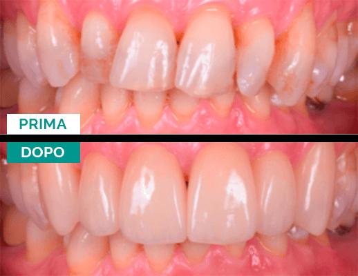 Terapia ortodontica Campus Odontoiatrico Varese